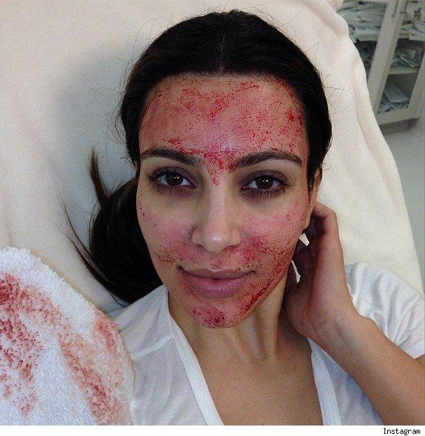 kim-kardashian_blood-facial